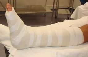 Short Leg Splint